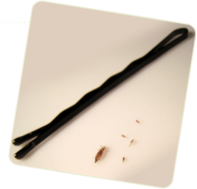 Professional Natural Head Lice Removal Image eClassifieds4u 1