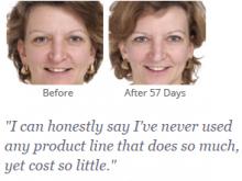 Revitaleze Skin Repair in 60 Days