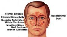 Get Guaranteed Surgery for Sinonasal tumors at HASC