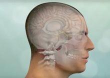 Get Sinonasal tumors Surgery done at HASC